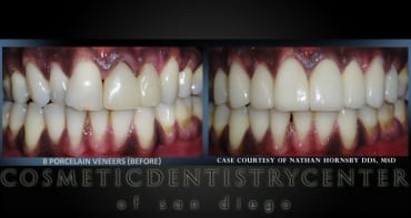 Veneers: A Recent Case