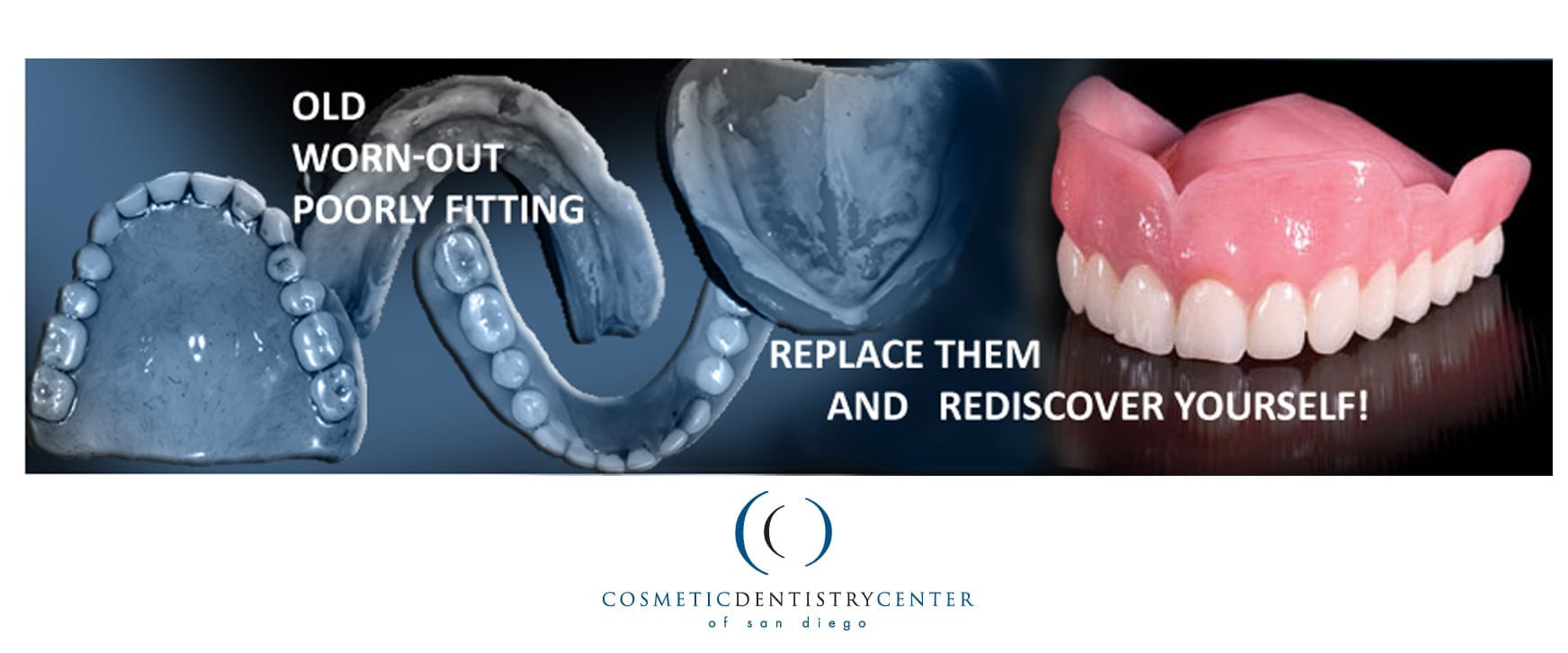 Immediate Dentures Cosmetic Dentistry Center Of San Diego