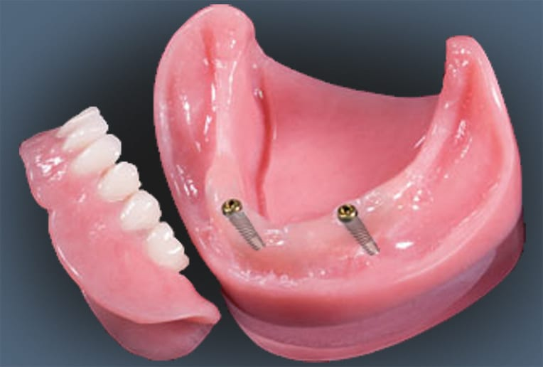 Implant Overdenture showing Implants
