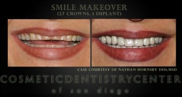 Crowns and Implants Rehab