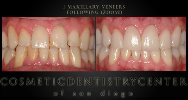 Teeth Whitening and Veneers