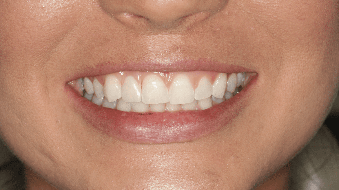The 'Flipper':  A Temporary Tooth